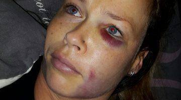 Getuigen mishandeling gezocht